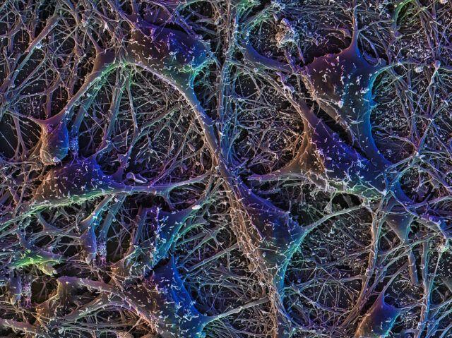 micro photography human cortical neurons